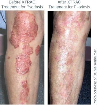 BA XTRAC Psoriasis TN