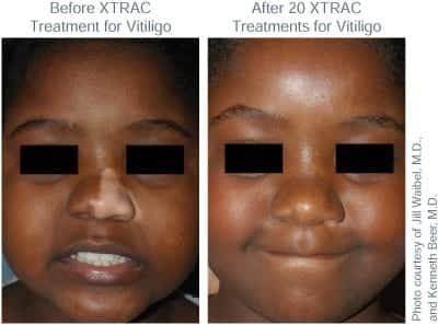 BA XTRAC Vitiligo Child TN