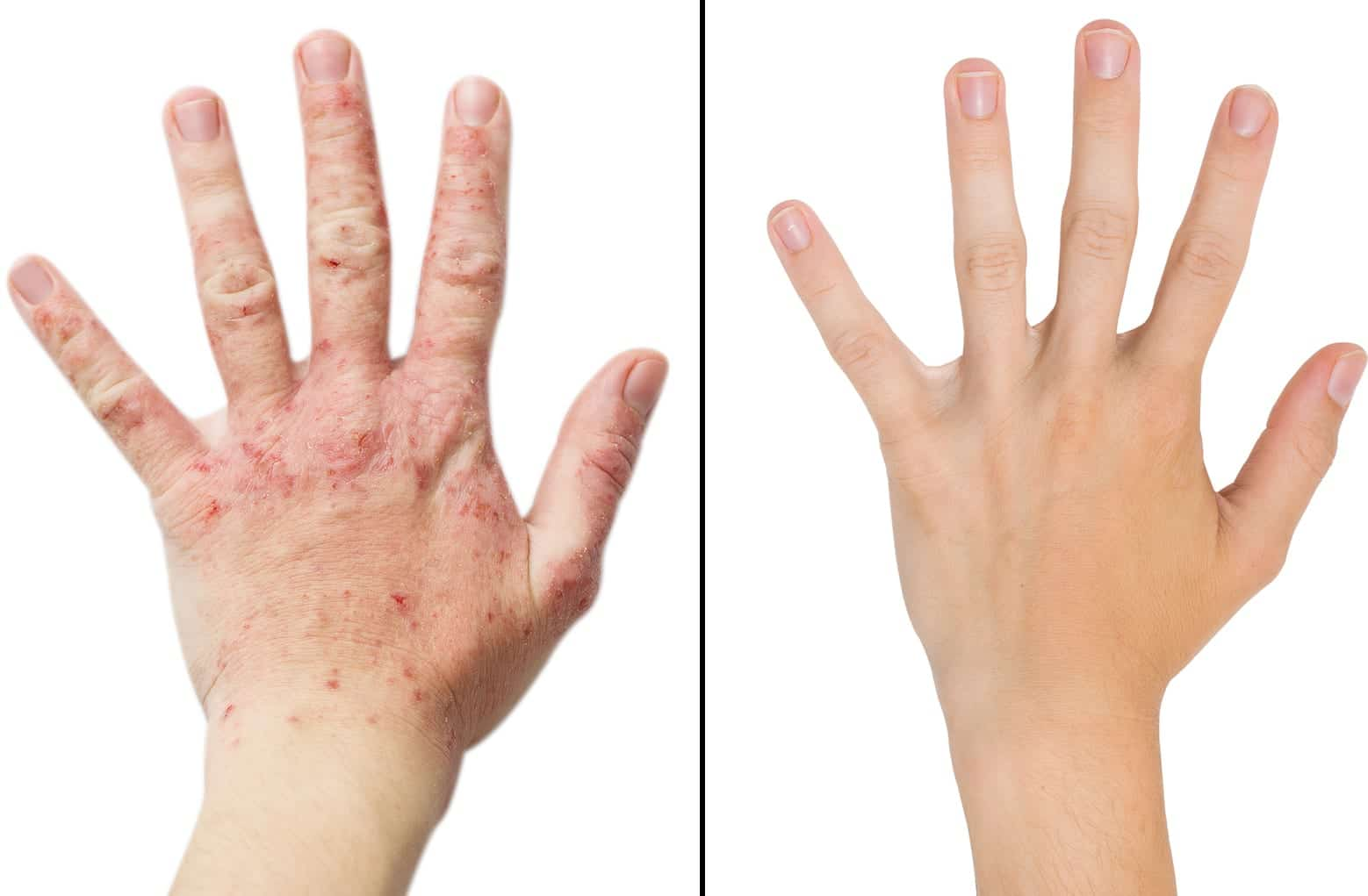Eczema before and after treatment.