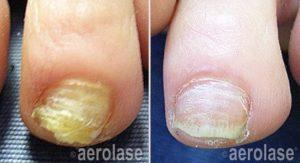 nails1 pair