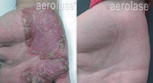 psoriasis1 pair